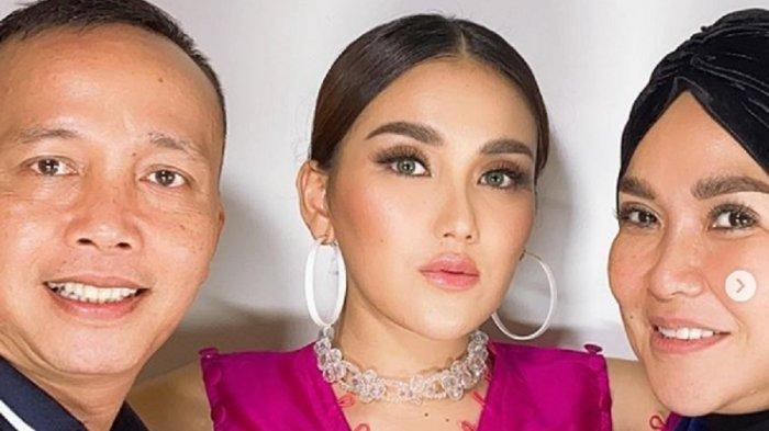 Wajah Ayu Ting Ting yang Dipermak Diungkap Dokter Kecantikan, Abdul Rozak & Umi Kalsum Tak Mau Kalah