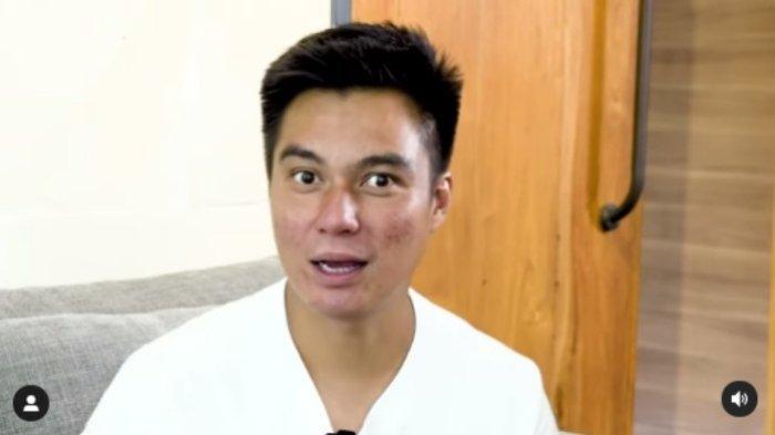 Baim Wong Disorot karena Video Kakek Suhud, Peneliti BRIN Sebut Undang-undang & Aturan Buat Konten