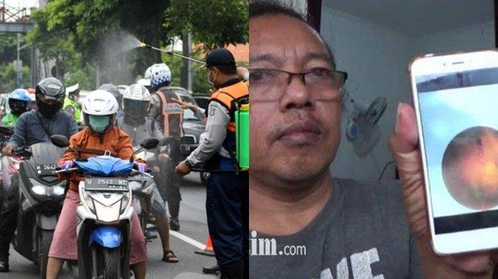 Disinfektan Makan Korban di Wilayah Risma, Pria Surabaya ini Nyaris Buta, Pembuluh Darah Mata Pecah