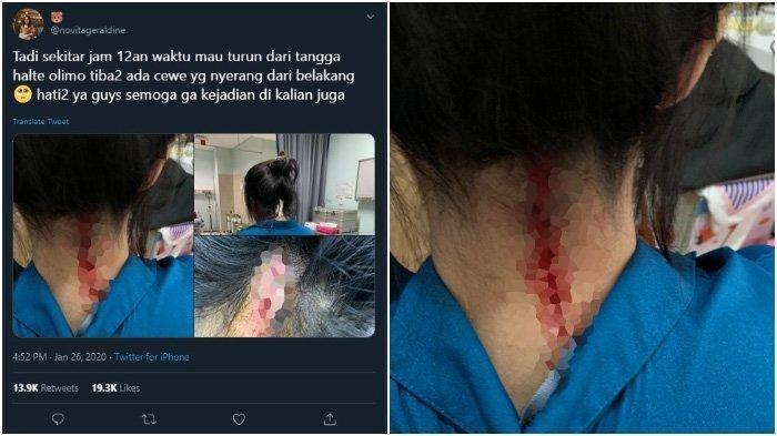 VIRAL, Berawal Ditepuk Pundak di Halte, Tiba-tiba Leher Wanita Ini Kucurkan Darah, Korban Histeris