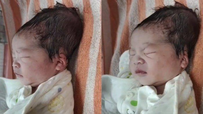 Dokter Spesialis Kandungan Buka Suara Terkait Video Viral Bayi Berkepala Lonjong