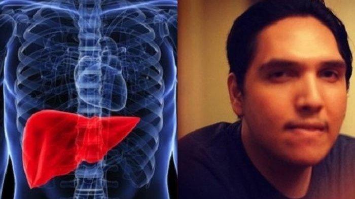 Faldy Albar Anak Ahmad Albar Meninggal karena Liver, Hindari Tujuh Kebiasaan Ini