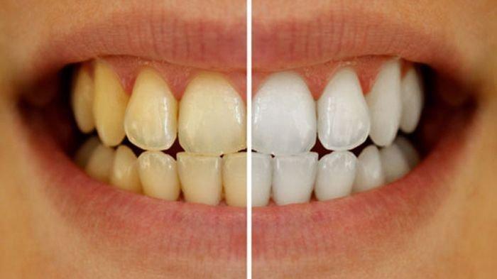 Berikut 5 Cara Murah dan Mudah Memutihkan Gigi Secara Alami dari Cuka Apel Hingga Flossing Teratur