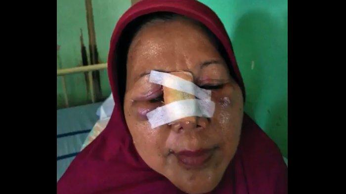 Kejam! Guru Wanita di Kalimantan Babak Belur Dipukuli Oknum Orangtua Siswa, Ini Kronologinya