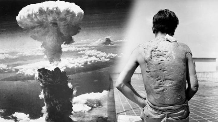 Kisah Pengirim Koran yang Jadi Korban Bom Atom Nagasaki, Lihatlah yang  Terjadi pada Tubuhnya! - Tribun Kaltim