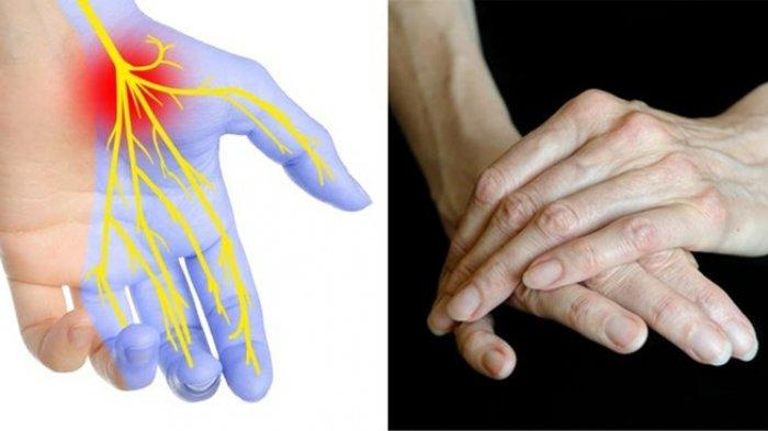 Perhatikan Tangan Anda Sekarang, 7 Kondisi Tangan ini Ternyata Bisa Menunjukkan Masalah Kesehatanmu