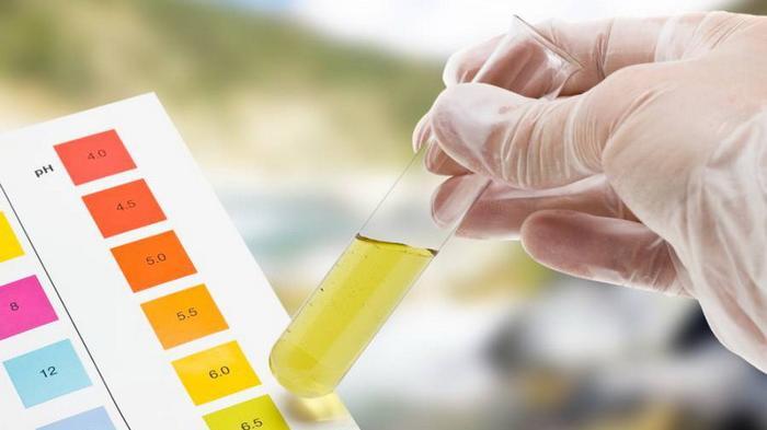 Ajukan Skripsi Maupun Tesis, Mahasiswa di Kampus Ini akan Diwajibkan Tes Urine