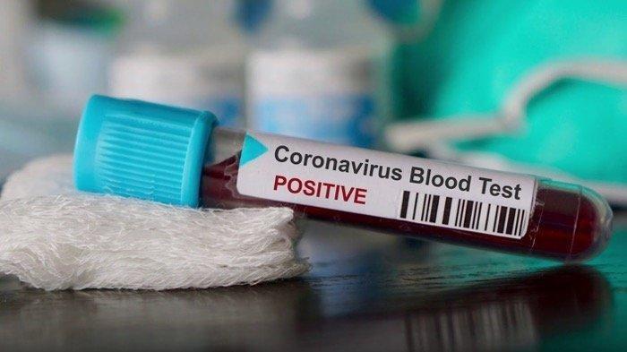 Jenis Baru Virus Corona Muncul di Inggris, Menyebar Lebih Cepat, Bagaimana Gejalanya