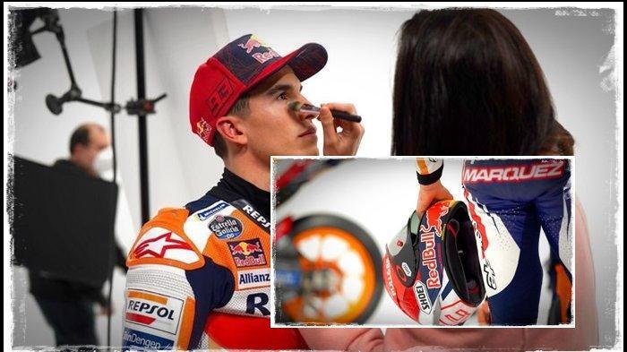 Kabar Terbaru Kondisi Marc Marquez, Repsol Honda Beber Kondisi Tulang Lengan Rival Valentino Rossi
