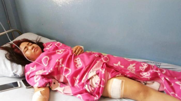 Sekali Sabetan Saja, Tangan dan Paha Mahasiswi Unlam Ini Bersimbah Darah