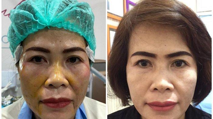 Foto klien sebelum dan sesudah tanam benang di Alula Aesthetic Clinic Balikpapan, Kalimantan Timur.