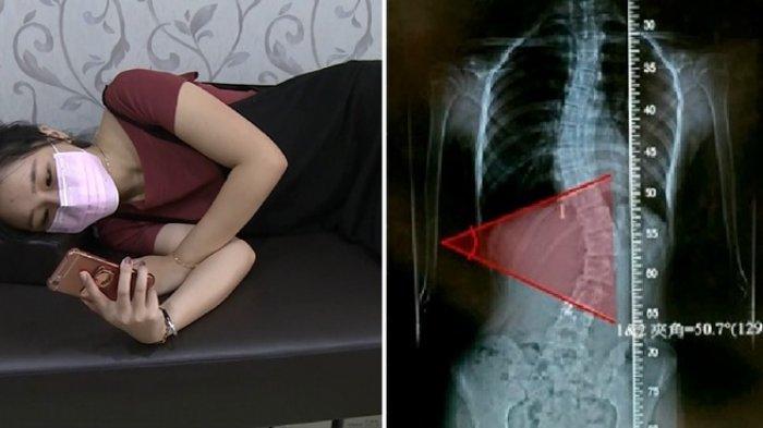 Sakit Tulang Belakang Bawah: Penyebab dan Cara Mengatasinya