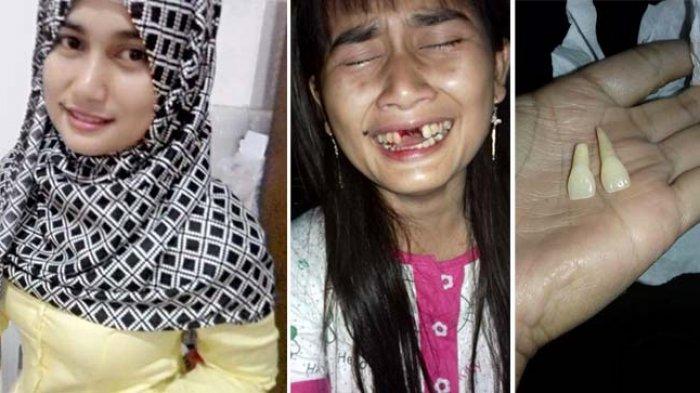 Menyakitkan! Kecantikan Wanita Ini Pudar Usai Giginya Copot, Penyebabnya Bikin Warganet Emosi
