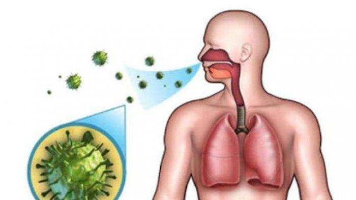 Benarkah Terapi Cuci Hidung Pakai Air Garam Bisa Hilangkan Virus Corona? Ini Penjelasannya