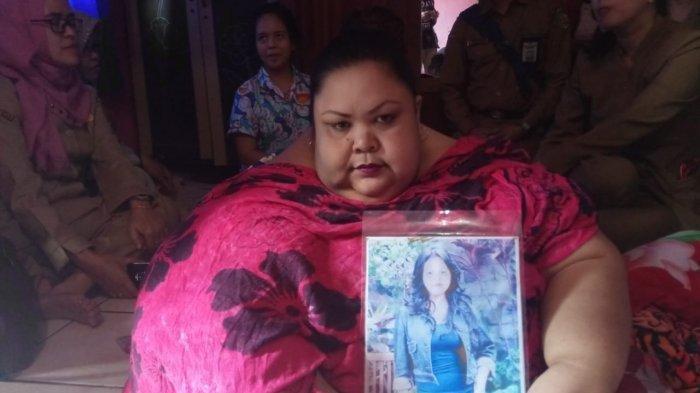 Berbobot 350 Kg, Begini Keseharian Pola Makan tak Sehat yang Dilakukan Wanita Asal Palangkaraya