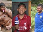 arya-permana-bocah-mantan-obesitas.jpg
