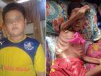 bocah-arif-meninggal-dunia-setelah-berjuang-melawan-penyakit-ganas_20180101_182434.jpg