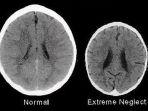 gambar-otak-dua-anak-berusia-tiga-tahun_20171120_175140.jpg