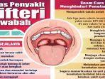 gejala-penyakit-difteri-dan-cara-pencegahannya.jpg