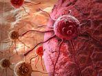 ilustrasi-gejala-kanker.jpg