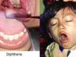 ilustrasi-penyakit-difteri-yang-menyerang-anak-anak_20171211_221440.jpg
