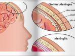 meningitis-yang-disebabkan-terinfeksi-bakteri.jpg