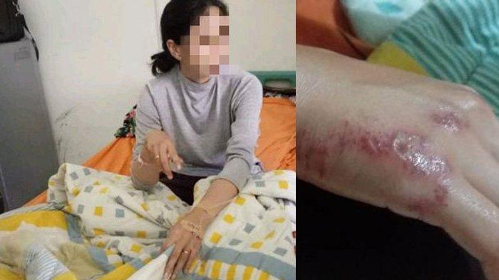 Kisah Oknum PNS Seret Istrinya Pakai Mobil Hingga Terluka dan Masuk Rumah Sakit