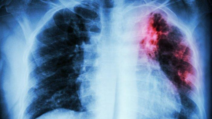 Gejala Penyakit TBC (Tuberkulosis), Awas Bisa Berubah Jadi TBC Laten jika Muncul Tanda Ini