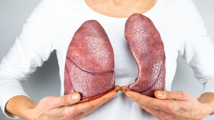 Batuk Kronis Tanda Bahaya, Kenali Gejala Kanker Paru-Paru Sejak Dini, Lebih Baik Hindari Resiko