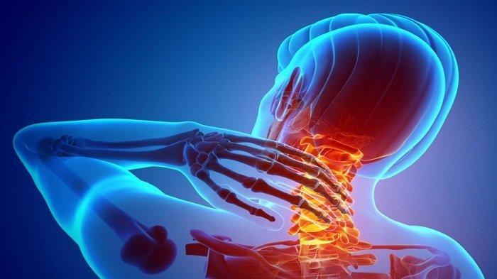 Nyeri Leher Bisa Jadi Gejala Penyakit Serangan Jantung jika Sering Muncul Diikuti Hal-Hal Ini
