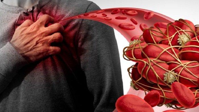 Pengentalan Darah Bisa di 5 Tempat, Gejala Penyakit Pengentalan Darah Mual Jantung Berdebar Tajam