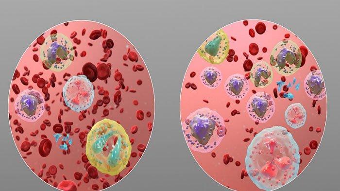 Gejala Penyakit Kanker Darah pada Anak, Pembengkakan Kelenjar Getah Bening di Leher Tanda Leukimia