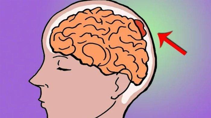 Waspadai Sakit Kepala Disertai Kejang, Bisa Saja Gejala Penyakit Mematikan Ini