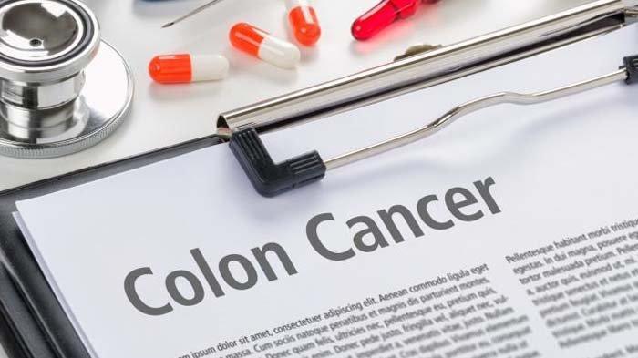 Begini Caranya Mencegah Kanker Usus Besar Guys