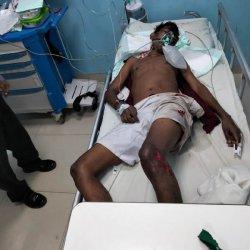Kecelakaan Tunggal, Pemuda Tanpa Identitas Sekarat di Rumah Sakit Siloam Kupang