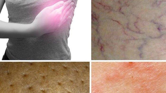 Kenali Gejala Penyakit Kanker Payudara Sejak Dini, Jangan Sampai Menyesal Nantinya, Ini Cirinya