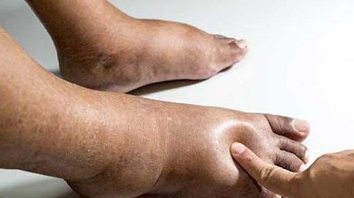 Gejala Penyakit Jantung Dilihat dari Kulit & Kuku: Kulit Berubah Warna Kaki Bengkak Kuku Melengkung