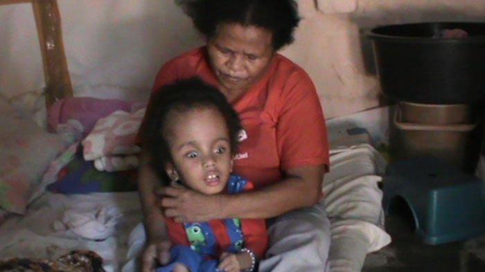 Minim biaya, Penderita Hidrosefalus di Kupang Pasrah