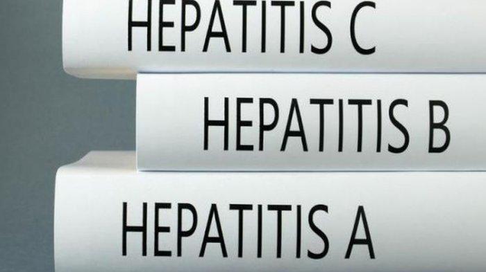 Gejala Hepatitis atau Liver yang Sering Disepelekan, Kenali Cirinya dan Deteksi Sejak Dini