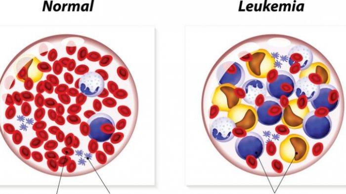 Moms, Kenali Gejala Leukemia Pada Anak Biar Tidak Menyesal