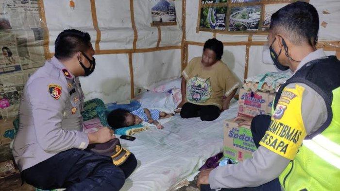 Bantuan Mulai Mengalir Bagi Bayi Penderita Hidrosefalus di Kupang