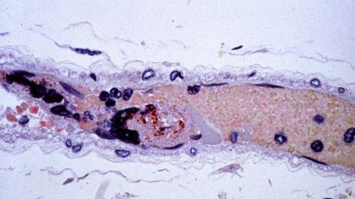 Covid-19 Belum Bisa Diatasi,kini Muncul Virus Baru dari China Bernama Nipah, Kematian 75 Persen