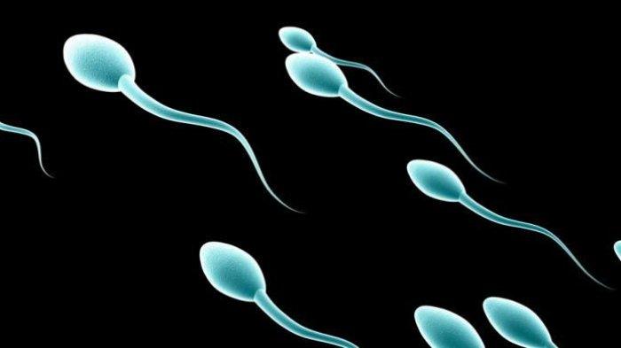 Berbagai Warna Sperma