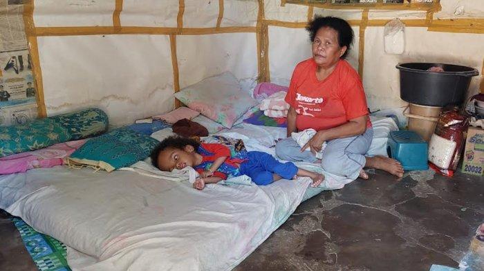 Ortu Menghilang, Anak 4 Tahun di Kupang Derita Hidrosefalus Butuh Bantuan