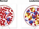 pasien-leukemia-berhasil-disembuhkan_20170201_144224.jpg