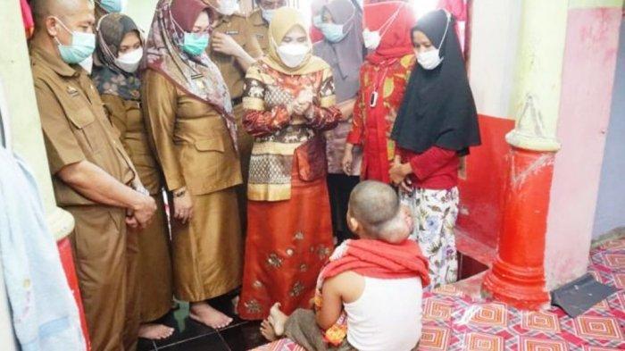 Hendrik Alzaini Anak Penderita Tumor Otak di Lampung Selatan Butuh Uluran Tangan para Dermawan