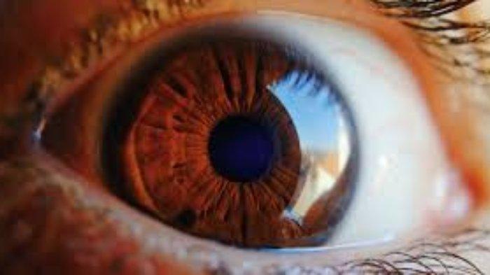 Apa Itu Glaukoma? Penyebab, Gejala dan Cara Obati Glaukoma, Simak Penjelasan dr M Yusran