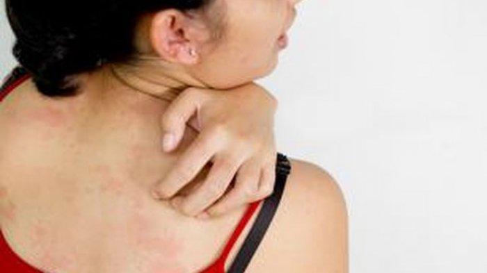 Tanda-tanda Kurap, Kenali Penyebab, Cara Pencegahan dan Cara Obati Kurap