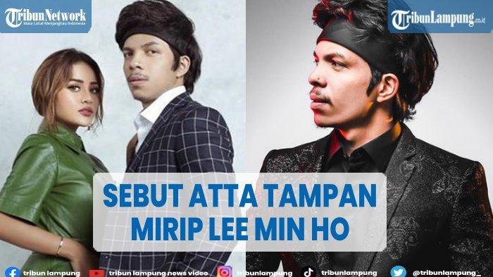 Aurel Hermansyah Sebut Atta Mirip Lee Min Ho Seusai Jalani Perawatan