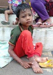 Derita Penyakit Kulit, Bocah 8 Tahun di Kotabumi Lampura Tegar Bantu Orangtua Memulung